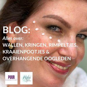 blog wallen rimpels kraaienpootjes ogen