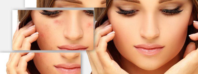 puber acne puistjes puur